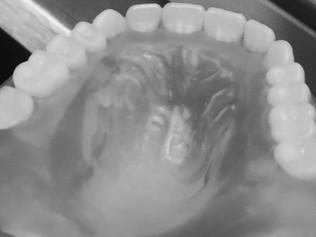 Dentures | Amarillo, TX | Studio32 Dental Arts, LLC